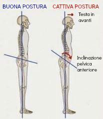 postura-inclinazione-pelvica-anteriore