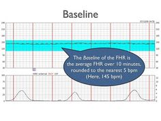 Fetal Heart Monitoring- Determining the Baseline. From Quillen College of Medicine