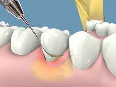 30+ лучших изображений доски «Пародонтология» в 2020 г   стоматология,  зубы, зубной