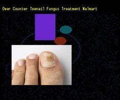 Fingernails Have An Eponychium Hyponychium Lunula Nail