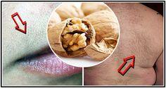 Zbavte sa neželaných chĺpkov na tvári a tele pomocou tohto receptu!