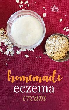 Homemade Eczema Cream Recipe for Dry Winter Skin via @fivespotgrnvlvng