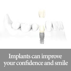 Dental implants are an investment in your happiness as well as your health, just take a look at these 5 reasons why!  1. They look and function like real teeth. 2. They prevent bone loss. 3. Freedom to eat all of the food you love. 4. A restored smile will give you a more youthful appearance. 5. You'll no longer need to remove dentures at night.  #blackswandentalspa #teethwhitening #dentist #dentistry