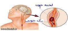 نشانههای ضربه مغزی http://bioteb.ir/9606