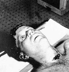 Una fotografía de la autopsia del presidente John F. Kennedy (22 de noviembre de 1963) Dos de los cirujanos del Parkland Memorial Hospital que trabajaron en vano para salvar al Kennedy herido de muerte vieron UNA evidencia clara de que fue alcanzado por balas tanto por delante como por detrás, demostrando que fue víctima de una conspiración. Pero temerosos de revelar lo que observaron en la sala de emergencias, permanecieron en silencio hasta años después. (APIC / GETTY IMAGES) John Kennedy, Air Force One, Familia Kennedy, Photos Rares, T 62, Kennedy Assassination, Post Mortem Photography, Celebrity Deaths, John Fitzgerald
