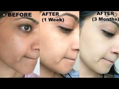 Skin Whitening Lightening Brightening Serum with Kojic Acid, Arbutin, Niacinamide, MAP Vitamin C, Hyaluronic Acid -Dark Spot Bleaching Cream - Acne Treatment Acne Skin, Acne Scars, Oily Skin, Acne Mask, Back Acne Treatment, Acne Treatments, Bleaching Cream, Lighten Skin, Bright Skin