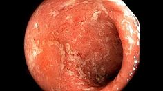 Ulcerative colitis (UC) is a long-term condition that results in inflammation and ulcers of the colon and rectum. Ulcerative Colitis, The Originals, Health, Health Care, Salud