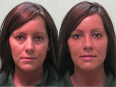 Before and after non-surgical blepharoplasty with Restylane