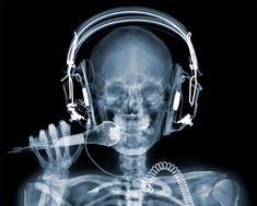 x-rays are amazing.