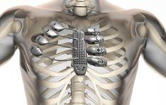 失った肋骨をチタン製3Dプリント骨格で再建。微妙な柔軟性も再現 - Engadget Japanese