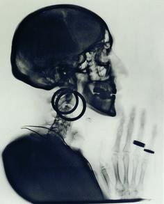 Meret Oppenheim | X-Ray of Meret Oppenheim's Skull (1964) | Artsy