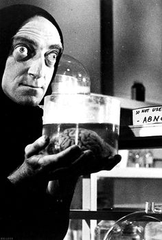 "Marty Feldman in ""Young Frankenstein""."