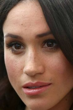 Celebrities with bad skin, nose jobs, hair transplants, bad teeth. Harry And Meghan News, Prince Harry And Megan, Meghan Markle Nose Job, Markle Prince Harry, Makeup Looks, Face Makeup, Beautiful Freckles, Princess Meghan, Meghan Markle Style