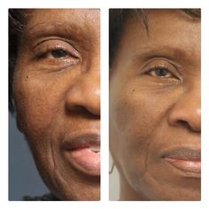NeriumAD is great for ALL skin types!  These results are from consistent use of NeriumAD night cream. You can't get this even with plastic surgery. it's life changing for so many. Contact me for questions & info: Www.youngnskin.nerium.com Mrsschraut@gmail.com