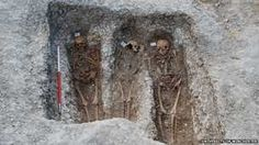 Medieval skeletons give clues to leprosy origins.