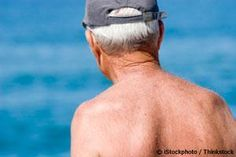 Melanoma skin cancer rates are increasing but it is NOT because of sun exposure.