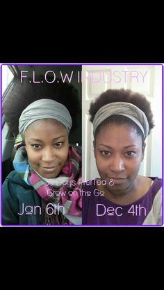 Yes!! Http://gr84growth.myflowindustry.com #hair #hairgrowth #flowindustry #folliclerescue