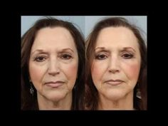 Upper & Lower Lid Blepharoplasty by Dr. Edwin Williams. #EyelidSurgery #bagsundertheeyes #heavyeyelids #DrEdwinWilliams #WilliamsCenterPlasticSurgerySpecialists