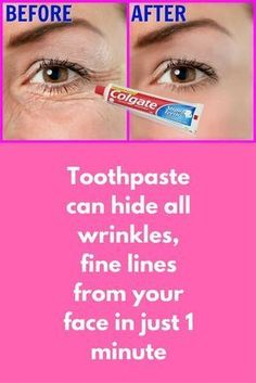 Toothpaste can hide all wrinkles, fine lines from your face in just 1 minute Step 1 – Pack For this you will need A plain toothpaste, do not use any gel based toothpaste (Use plain colgate) Tomato juice Vitamin E capsule Aloe vera gel First in a clean bowl take half spoon of toothpaste. . In this add half spoon of aloe vera gel, make sure we have to …