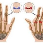 Arthritis can occur in over than 100 forms, but in most cases, people suffer from osteoarthritis and rheumatoid arthritis. Most often, rheumatoid arthritis usually occurs in the smaller joints of the hands and feet, and is due to the collapse of the...