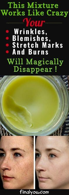 Skin Beauty Remedies Prepare This Mixture Right Now And Your Wrinkles, Blemishes, Stretch Marks And Burns Will Magically Disappear! Beauty Care, Beauty Skin, Diy Beauty, Home Remedies, Natural Remedies, Health And Wellness, Health And Beauty, Beauty Hacks For Teens, Beauty Recipe