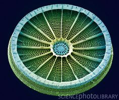 Diatom. Coloured scanning electron micrograph (SEM) of the Arachnoidiscus sp. diatom