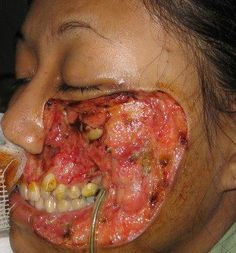 Flesh Eating Bacteria - Necrotizing Fasciitis / Aeromonas Hydrophila. FUCK THAT! That has to hurt!
