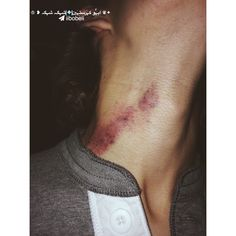 hickies relationship goals hickies relationship go - relationshipgoals Alcohol Aesthetic, Daddy Aesthetic, Couple Goals Teenagers, Cute Couples Goals, Freaky Relationship Goals Videos, Cute Relationships, Hickies Neck, Love Couple Images, Best Friend Outfits