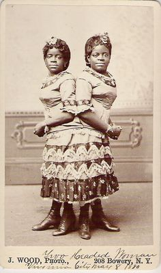 Millie and Christine McCoy, conjoined twins, 1880