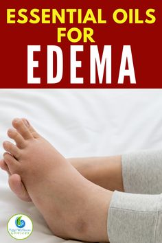 If you are looking for swollen feet or edema remedies, then you may find these essential oils for swollen feet and ankles helpful for reducing foot and leg edema or water retention. Essential Oils Uses Chart, Essential Oils For Skin, Essential Oil Diffuser Blends, Young Living Essential Oils, Essential Oil For Swelling, Essential Oils For Inflammation, Easential Oils, Lotion, Adhd Help