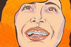 10 Things Only Those Who Wore Braces Would Understand   Humor   spot.ph