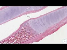 PathElective.com - normal fetal tissues - YouTube