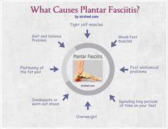 5 minute plantar fasciitis solution pdf