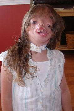 Juliana Wetmore - a young girl with Treacher-Collins syndrome