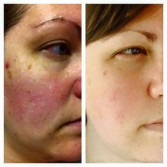 Results with Nerium  Www.lc2305.nerium.com