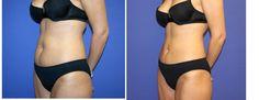 #Liposuctie - #Liposculptuur buik #plastischechirurgie Meer weten? Klik op:  http://www.wellnesskliniek.com/nl/liposculptuur/liposuctie