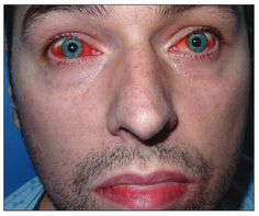 Mycoplasma pneumoniae –associated mucositis | Bilateral conjunctivitis with severe subconjunctival hemorrhage and erythematous lips in  a 35-year-old man. First published February 29, 2016, doi: 10.1503/cmaj.151017 35 Year Old Man, February, Lips, Medical, Image, Medicine, Med School, Active Ingredient