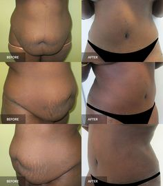 Tummy Tuck: before & after, 6 months post-op  #tummytuck #abdominoplasty #plasticsurgery Tummy Tuck Before After, Dr Alexander, Tummy Tucks, Abdominal Muscles, Plastic Surgery, 6 Months, How To Remove, Cosmetics