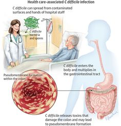Clostridium difficile Infection 2014-11