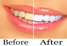 Whiter Teeth ~Baking Soda and Lemon. This may b - Whiter Teeth ~Baking Soda and Lemon. This may be one of the most popular of the natural teeth whitening home remedies. The chemical reaction of baking soda with the citrus of lemon juice has a sm White Teeth Baking Soda, Baking Soda And Lemon, Health And Beauty Tips, Health Tips, Oral Health, Teeth Health, Dental Health, Healthy Teeth, Healthy Beauty