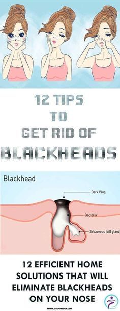 This is an awesome method of eliminating blackheads. This is because it softens and loosens the skin while driving out the blackheads naturally.