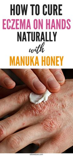 <img> Natural remedy for severe hand eczema is manuka honey. Learn how to use it properly and how to choose most potent manuka honey. Read about real scientific evidences that it cures eczema on hands. Home Remedies For Eczema, Natural Sleep Remedies, Natural Cures, Natural Health, Herbal Cure, Herbal Remedies, Health Remedies, Manuka Honey Eczema, Eczema On Hands