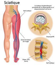 Le nerf sciatique est l'un des plus longs nerfs du corps. Il s'étend tout au long de la partie inférieur du corps jusqu'aux pieds pour assurer la motricité et la sensibilité. Presque 40 % de toutes les personnes aurons une sciatique à un moment donné de leur vie. C'est une maladie qui est souvent confondue …