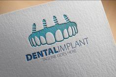 #Dental implant business card design