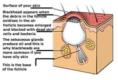 We all know what blackheads look like - but how many of us could actually explain what they are? Apparently, they are not dirt - so head on over to this webpage and find out for yourself, not only what these pesky things are made of - but how to get rid of them too!