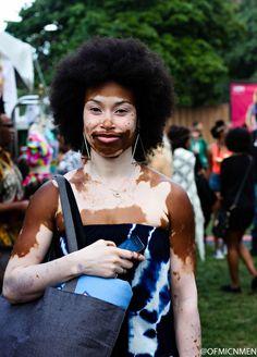 Hell yeah vitiligo is beautiful Black Girls Rock, Black Girl Magic, Pretty People, Beautiful People, Beautiful Women, Afro Punk Fashion, Curly Hair Styles, Natural Hair Styles, Pelo Natural