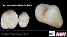 Dental Anatomy, Dental Art, Dentistry, Clinic, Teeth, Smile, Food, Dental Laboratory, Shapes