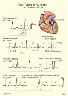 4 types of atrio-ventricular heart block