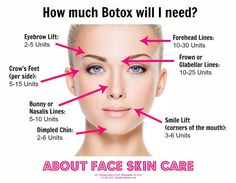 The average amount of Botox units needed, per facial area.