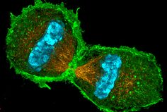 Super-resolution microscopy- here's an image of a cell entering telophase (spindle = orangle, chromatin = blue, actin cytoskeleton = green)